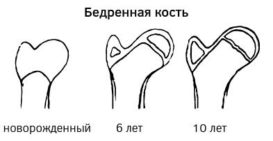 Развитие бедренной кости